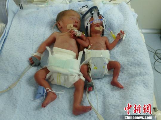 """图为龚月红2013年产下的早产儿双胞胎。孩子出生时小儿子体重仅660克,是当时重庆""""最低体重新生儿""""。""""长得比较好""""的哥哥体重也仅1330克。重庆妇幼保健院"""