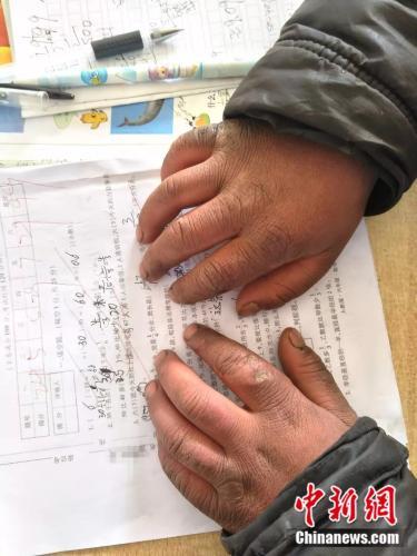 小孩冻红的双手。来源:转山包小学校长付恒 供图