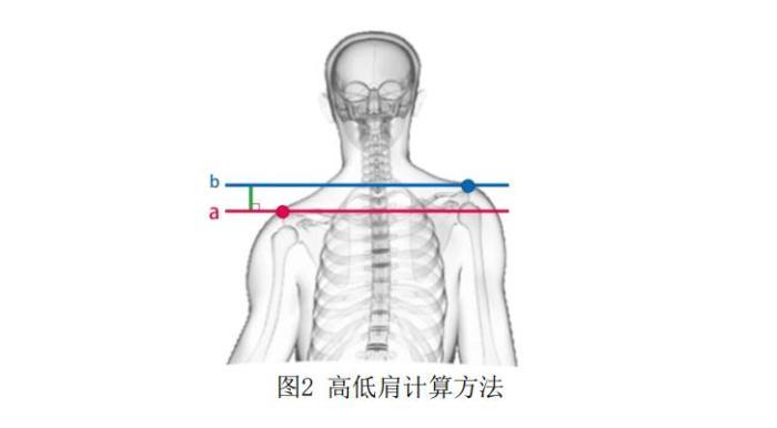 《儿童青少年身体姿态测试指标与方法》中高低肩的计算方法。