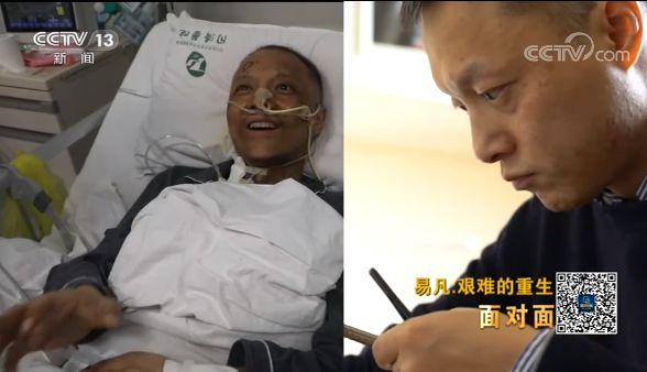 """""""黑脸医生""""易凡的重生之路:争取早日回到手术台"""