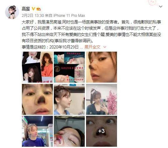 这位女演员声称美容治疗失败并且鼻尖坏死。