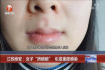 女子挤了三角区痘痘被送进ICU