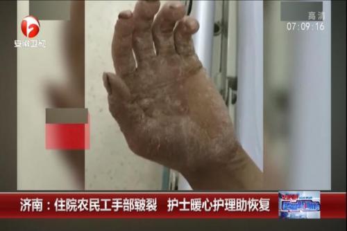 住院农民工手部皲裂 护士暖心护理助恢复