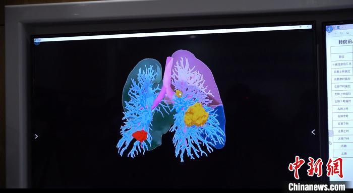 图为三维重建的新冠肺炎患者肺部模型 杜潇潇 摄