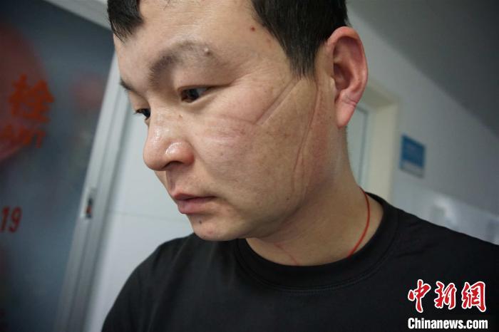 摘下口罩的平国华 宁波疾控中心供图 摄