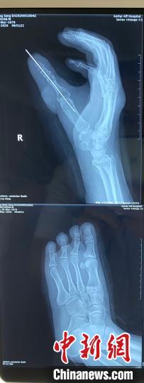 """男子拇指意外被截断 医生""""移花接木""""脚趾变手指"""