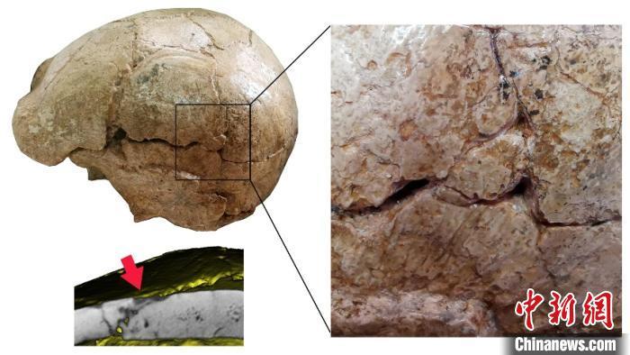 和縣直立人頭蓋骨表面的裂痕(吳秀傑 供圖)
